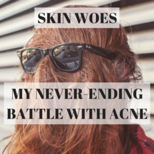 my never-ending battle with acne